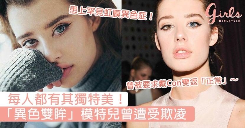 每人都有其獨特美!「異色雙眸」模特兒因「與眾不同」曾遭受欺凌,成功走出陰霾成就更好的自己!