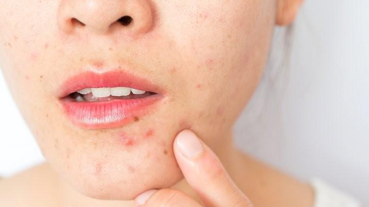 【暗瘡解決】女生5大爆痘痘常犯習慣,亂用保養品、清潔過度、肌膚過乾?