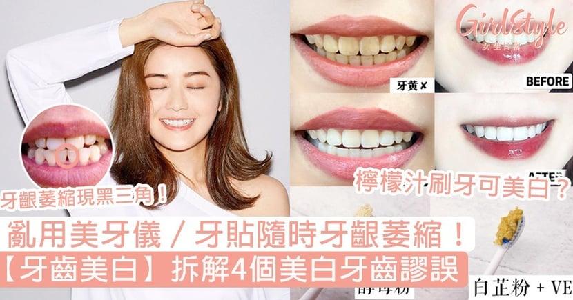 【牙齒美白】拆解4個美白牙齒謬誤!檸檬汁刷牙可美白?亂用美牙儀隨時牙齦萎縮!