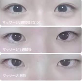 日本大熱,整容級,眼部按摩,放大眼睛,水腫眼,雙眼皮,臥蠶