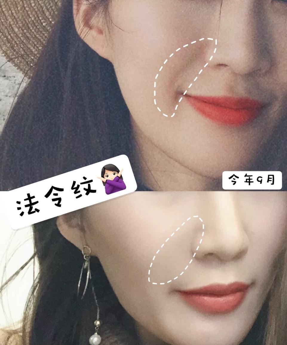 1分鐘按摩淡化法令紋保年輕,日本美容師親授抗衰老去法令紋簡單手法