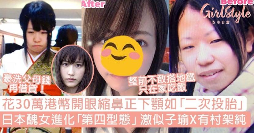 花30萬港幣開眼頭縮鼻正下顎如「二次投胎」!日本女進化激似子瑜X有村架純!