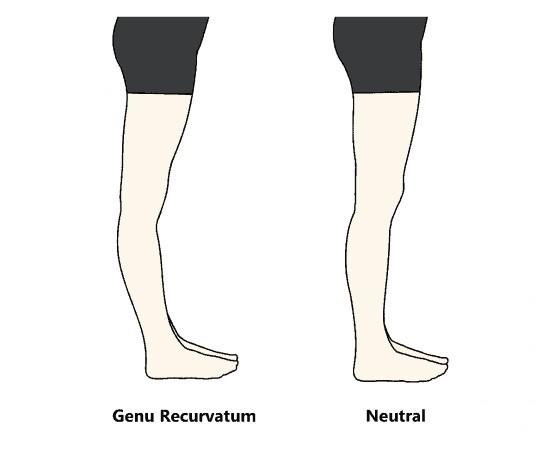 瘦大脾拉筋動作 膝蓋超伸