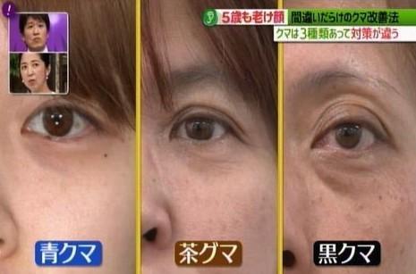 黑眼圈顏色,去黑眼圈,黑眼圈形成,日本醫生