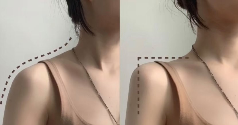 女生們一直都很想擁有直角肩、顯瘦的鎖骨、頸部優美的線條吧~在拼命練肩膊的時候,別忘了「斜方肌」這塊最顯肥的肌肉!姿勢不正和練習時用錯力也會讓這塊肌肉腫而大~所以拉鬆這塊肌肉很重要,以下是超解壓的「斜方肌消除法」!