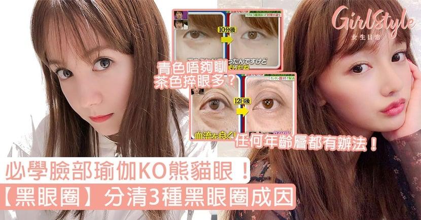 【黑眼圈改善】分清3種黑眼圈成因!青色唔夠瞓、茶色捽眼多?必學臉部瑜伽KO熊貓眼!