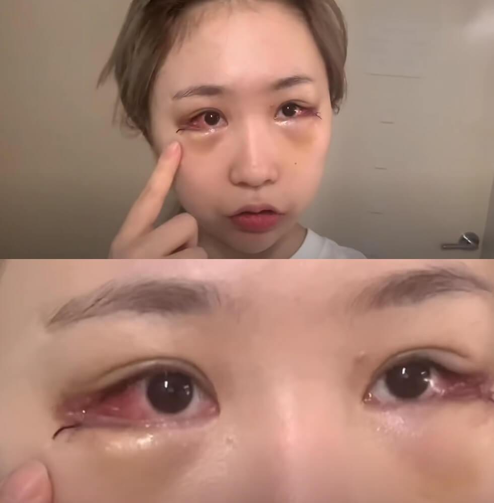 趙秀珍做臥蠶手術、開眼角的影片,更有超過過百萬的點撃率!