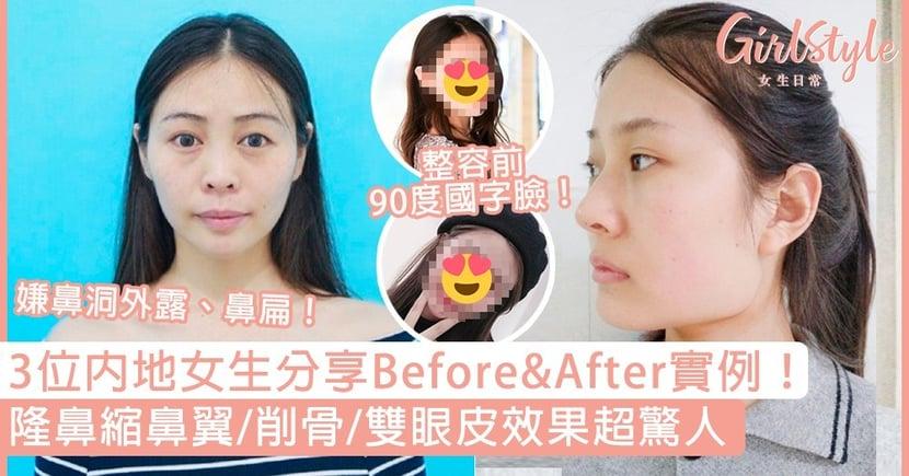 【整容前後】內地女生微博分享整容Before&After!隆鼻縮鼻翼/削骨/雙眼皮效果超驚人