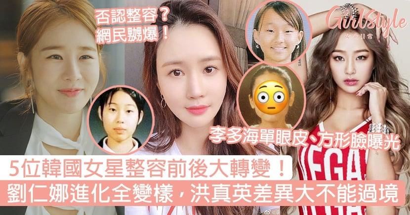 5位韓國女星整容前後大轉變!劉仁娜進化全變樣,洪真英差異太大不能過境!