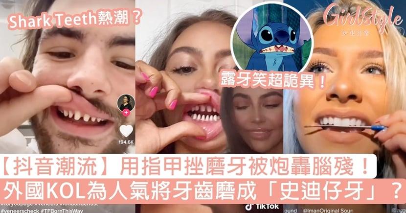 【抖音潮流】外國KOL為人氣將牙齒磨成「史迪仔牙」?用指甲挫磨牙被轟腦殘!