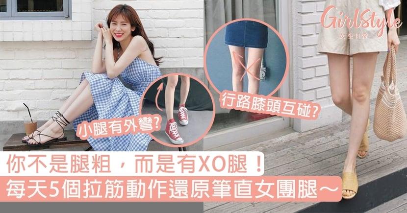 行路時膝頭互碰?小腿外彎嚴重?你不是腿粗而是XO腿!5個拉筋動作還原女團腿