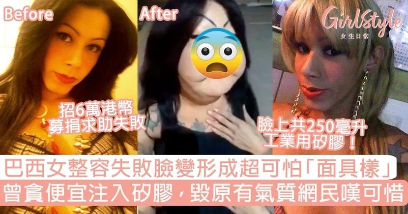 巴西女整容失敗臉變形成超可怕面具樣!曾貪便宜注入矽膠,毀原有氣質網民嘆可惜~