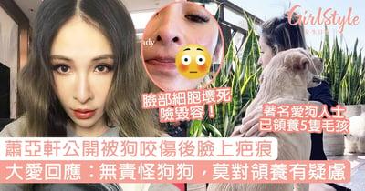 蕭亞軒公開被狗咬傷後臉上疤痕,大愛回應:無責怪狗狗,莫對領養有疑慮