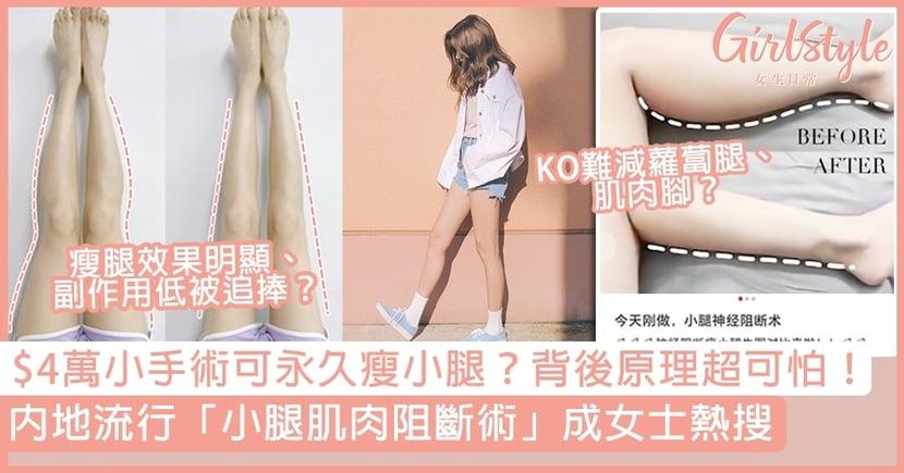 內地流行「小腿肌肉阻斷」成女士熱搜!$4萬小手術永久瘦小腿,背後原理原來係?