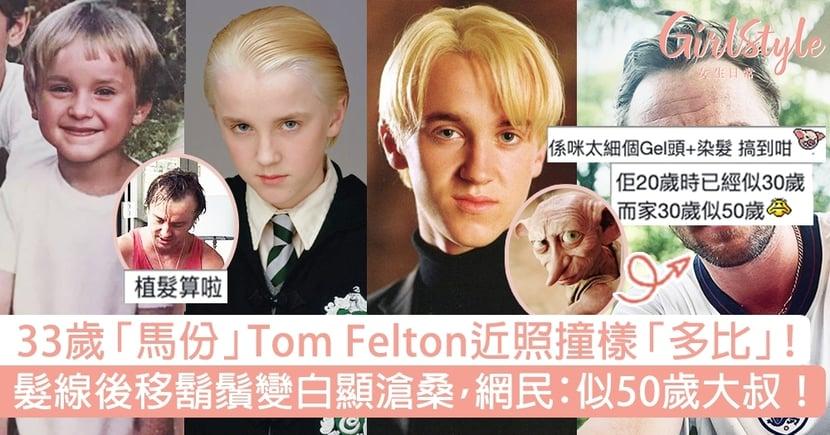 33歲「馬份」Tom Felton近照撞樣多比!髮線後移顯滄桑,網民:似50歲大叔!